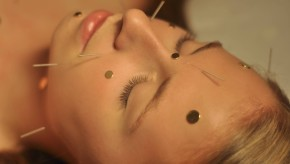 <strong>Lifting par l'Acupuncture </strong>